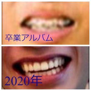 志尊淳の歯並びビフォーアフター