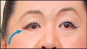 マツコ・デラックスの目が赤い